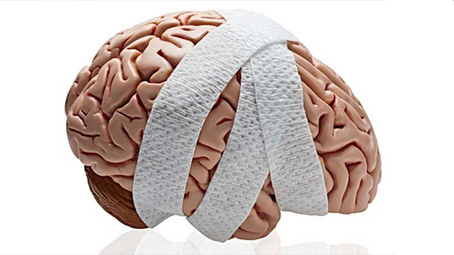 Los Mejores Abogados en Español de Lesiones Cerebrales Para Mayor Compensación en Azusa California